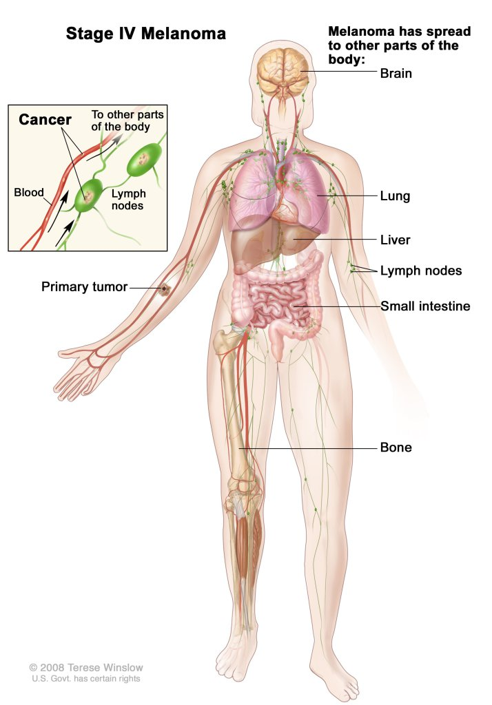 Stage IV Melanoma